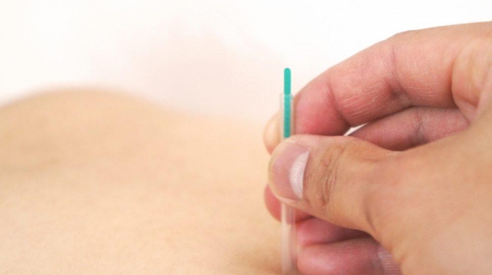 針と毛抜きで、がん治療 無免許の男性10年以上続ける